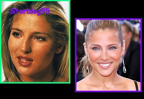 Elsa Pataky : chirurgie esthétique - Sexy Hollywood TV