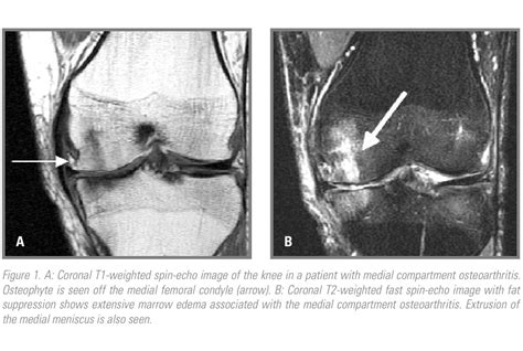 Knee Osteoarthritis: Detecting Early Changes with MRI